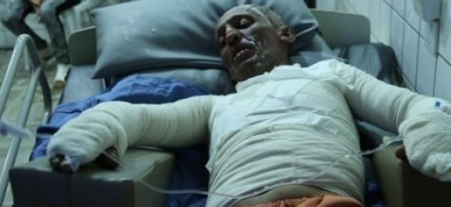 PKK'yı protestı için kendini yaktı
