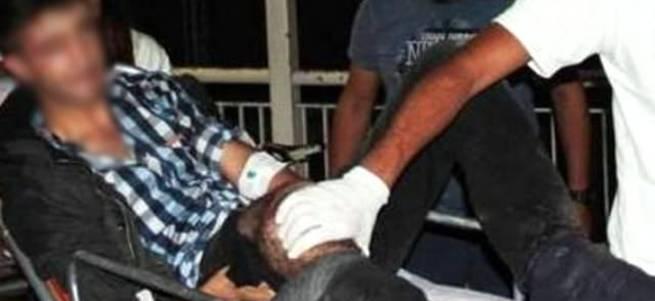 İzne gelen asker polise molotof atarken yaralandı