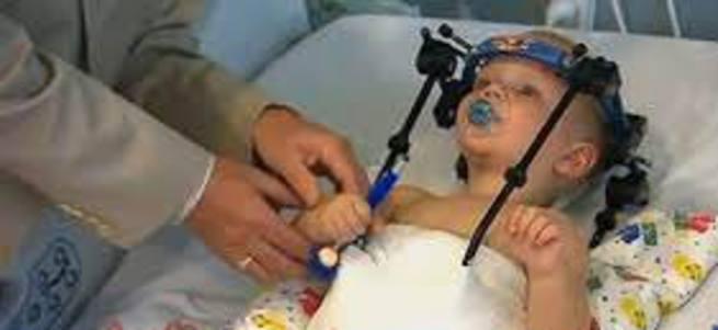 Başı kopan bebek kurtarıldı