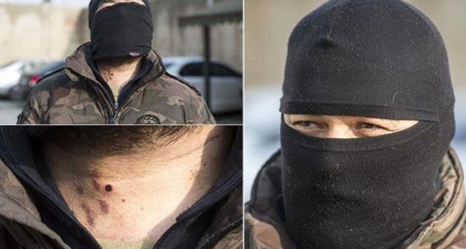 Yaralanan özel harekat polisi çatışmaya geri döndü