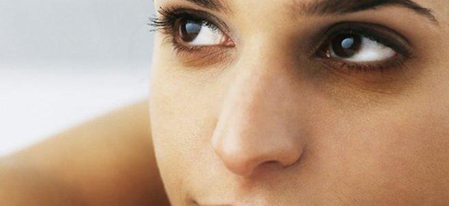 Göz altı morlukları neyin belirtisi?